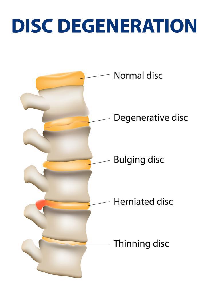 Disk Degeneration